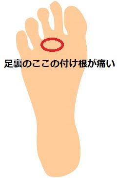 歩くと足の指の付け根が痛い